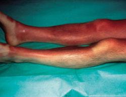 Fig. 3 : Brûlure 1er degré